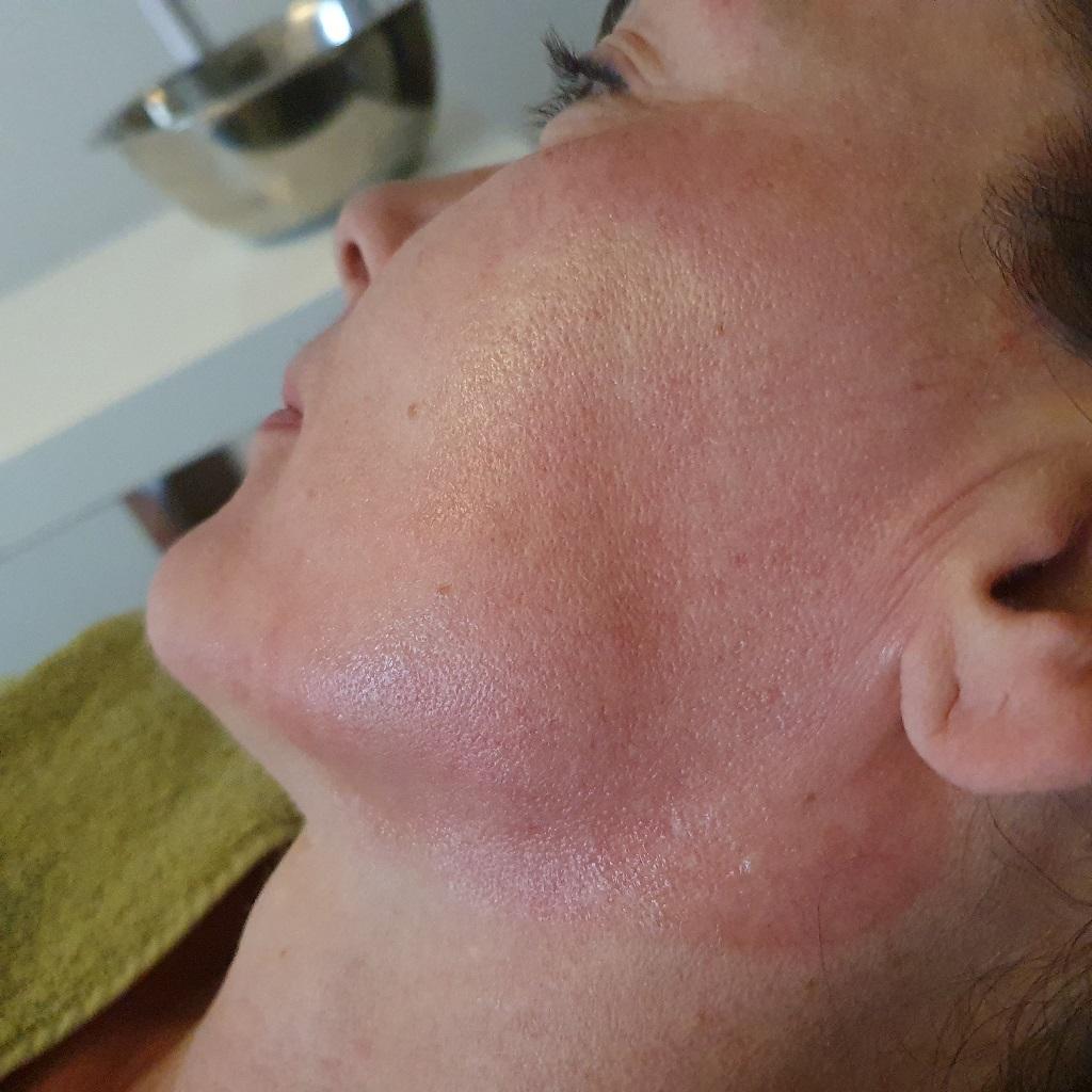 Reactie van de huid op microneedling